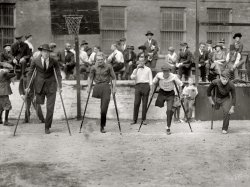 One-Legged Race: 1919