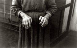 Mrs. Ostermeyer: 1936